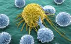Cancer: une découverte sensationnelle